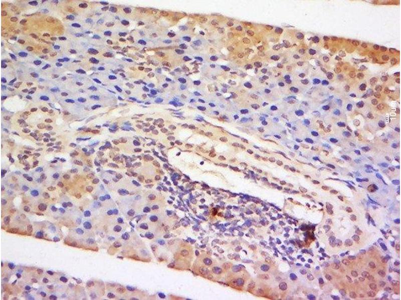 Immunohistochemistry (Paraffin-embedded Sections) (IHC (p)) image for anti-STAT5A antibody (Signal Transducer and Activator of Transcription 5A) (AA 70-120) (ABIN738276)