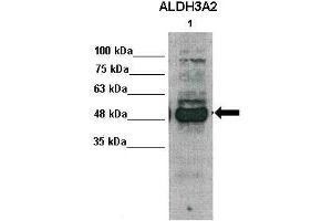 Image no. 5 for anti-Aldehyde Dehydrogenase 3 Family, Member A2 (ALDH3A2) (Middle Region) antibody (ABIN2781792)