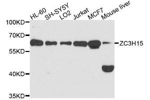 Image no. 1 for anti-Zinc Finger CCCH-Type Containing 15 (ZC3H15) antibody (ABIN6150398)