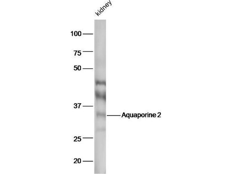 Western Blotting (WB) image for anti-Aquaporin 2 (Collecting Duct) (AQP2) (AA 177-202) antibody (ABIN707576)