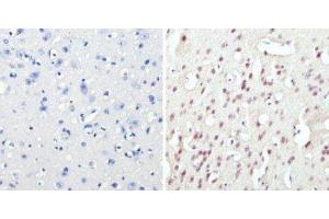 Immunohistochemistry (Paraffin-embedded Sections) (IHC (p)) image for anti-cAMP Responsive Element Binding Protein 1 (CREB1) antibody (ABIN4300445)
