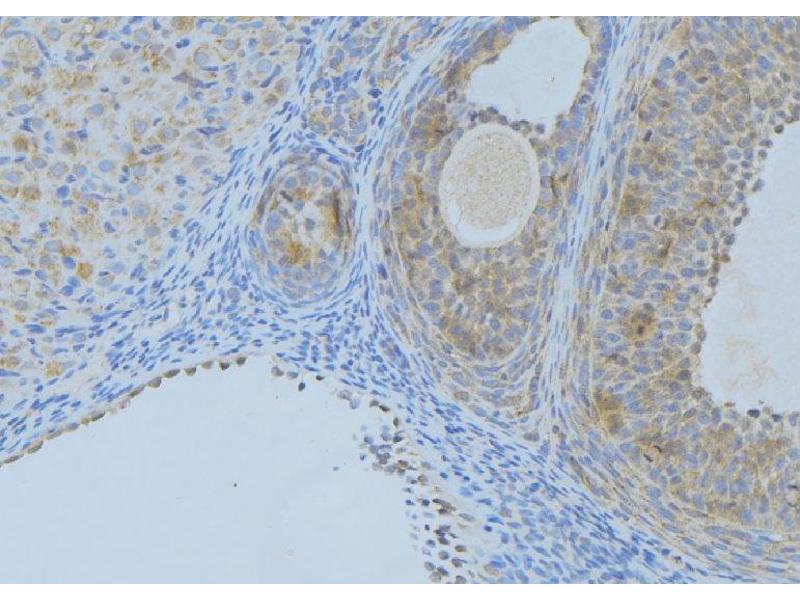 Immunohistochemistry (IHC) image for anti-Angiopoietin 2 (ANGPT2) antibody (ABIN6259928)