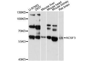 Image no. 1 for anti-Acyl-CoA Synthetase Family Member 3 (ACSF3) antibody (ABIN6292804)