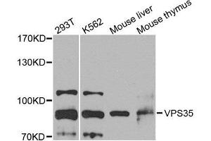 Image no. 1 for anti-Vacuolar Protein Sorting 35 (VPS35) antibody (ABIN6150130)