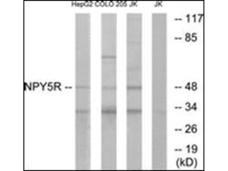 Western Blotting (WB) image for anti-Neuropeptide Y Receptor Y5 (NPY5R) (Internal Region) antibody (ABIN5611584)