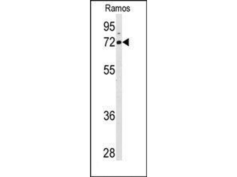 image for anti-Arachidonate 15-Lipoxygenase (ALOX15) (C-Term) antibody (ABIN360266)