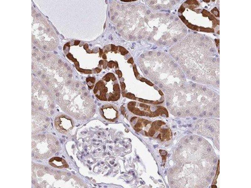 Immunohistochemistry (IHC) image for anti-RBM18 抗体 (RNA Binding Motif Protein 18) (ABIN4349589)