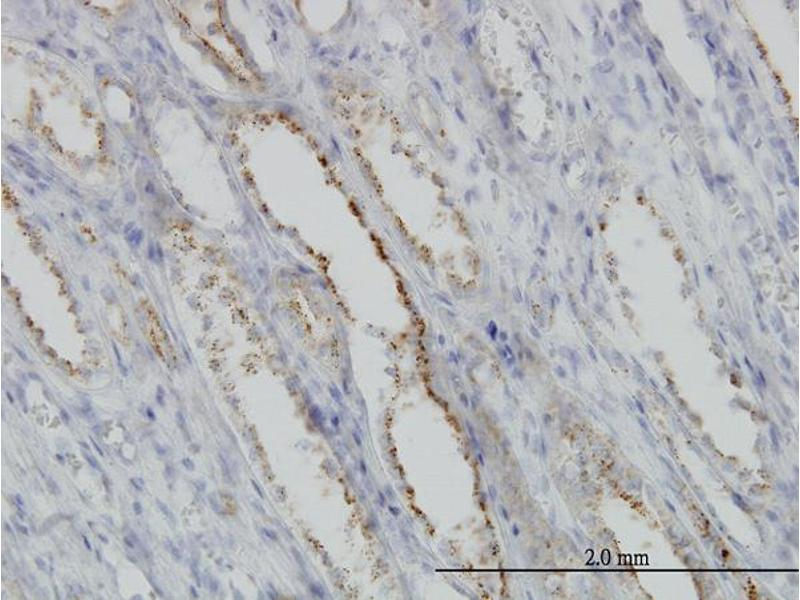 Immunostaining (ISt) image for anti-Calpain S1 antibody (Calpain, Small Subunit 1) (AA 172-260) (ABIN560162)
