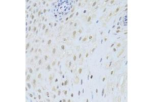 Image no. 5 for anti-Apoptosis-Inducing Factor, Mitochondrion-Associated, 1 (AIFM1) antibody (ABIN3023385)