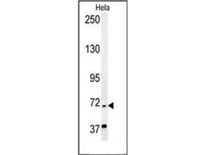 Western Blotting (WB) image for anti-ERCC6L2 antibody (Excision Repair Cross-Complementing Rodent Repair Deficiency, Complementation Group 6-Like 2) (N-Term) (ABIN954433)