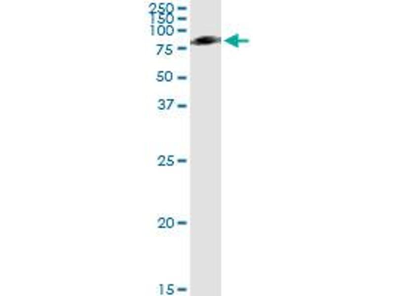 Immunoprecipitation (IP) image for anti-Serpin Peptidase Inhibitor, Clade G (C1 Inhibitor), Member 1 (SERPING1) (AA 1-500), (full length) antibody (ABIN513846)