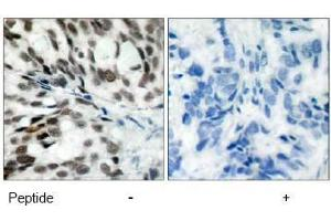 image for anti-Retinoblastoma 1 antibody (RB1) (Ser780) (ABIN197285)