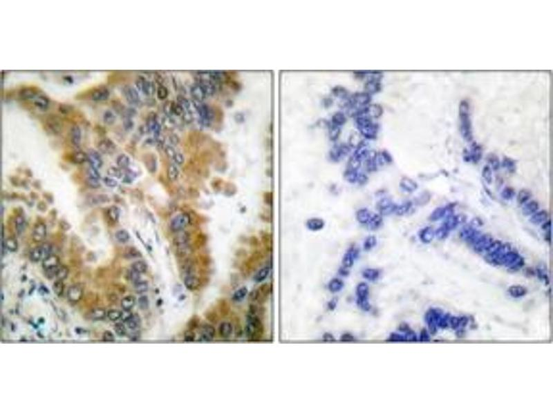 Immunohistochemistry (IHC) image for anti-V-Crk Sarcoma Virus CT10 Oncogene Homolog (Avian)-Like (CRKL) (AA 173-222) antibody (ABIN1532241)