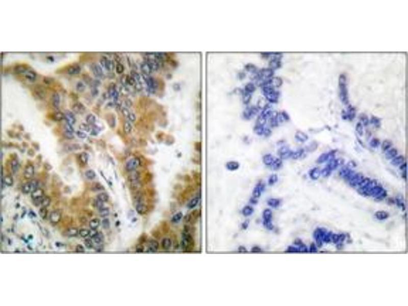 Immunohistochemistry (IHC) image for anti-V-Crk Sarcoma Virus CT10 Oncogene Homolog (Avian)-Like (CRKL) (AA 173-222) antibody (ABIN1532241)