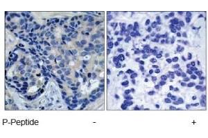 Immunohistochemistry (IHC) image for anti-PTK2B Protein tyrosine Kinase 2 beta (PTK2B) (pTyr402) antibody (ABIN257536)