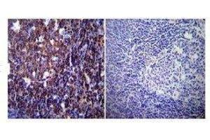Immunohistochemistry (IHC) image for anti-NFATC1 antibody (Nuclear Factor of Activated T-Cells, Cytoplasmic, Calcineurin-Dependent 1) (AA 1-654) (ABIN152773)
