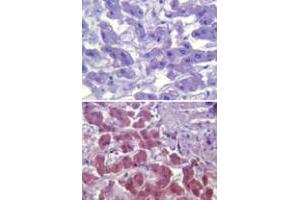 Image no. 1 for anti-Toll-Like Receptor 6 (TLR6) antibody (ABIN531987)