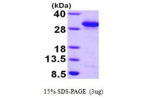 Image no. 1 for RAB27A, Member RAS Oncogene Family (RAB27A) (AA 1-221) protein (His tag) (ABIN666995)