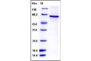 Image no. 1 for Telomeric Repeat Binding Factor (NIMA-Interacting) 1 (TERF1) (AA 1-419) protein (His tag) (ABIN2005388)