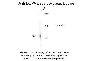 Image no. 1 for anti-Dopa Decarboxylase (Aromatic L-Amino Acid Decarboxylase) (DDC) antibody (ABIN6655051)