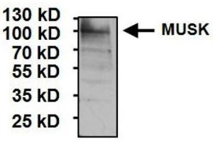 Western Blotting (WB) image for anti-MUSK antibody (Muscle, Skeletal, Receptor Tyrosine Kinase) (AA 210-304) (ABIN267349)