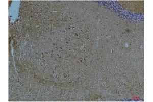 Image no. 1 for anti-Potassium Voltage-Gated Channel, Subfamily H (Eag-Related), Member 7 (KCNH7) antibody (ABIN3188071)