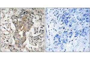 Image no. 2 for anti-Sphingosine Kinase 2 (SPHK2) (AA 580-629) antibody (ABIN1533192)
