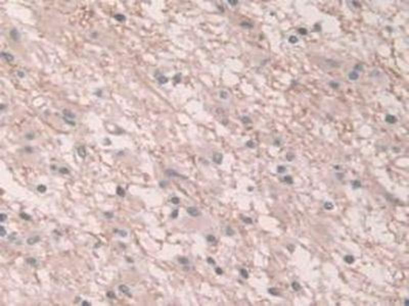 Immunohistochemistry (Paraffin-embedded Sections) (IHC (p)) image for anti-Gap Junction Protein, alpha 1, 43kDa (GJA1) (AA 180-382) antibody (ABIN2896844)