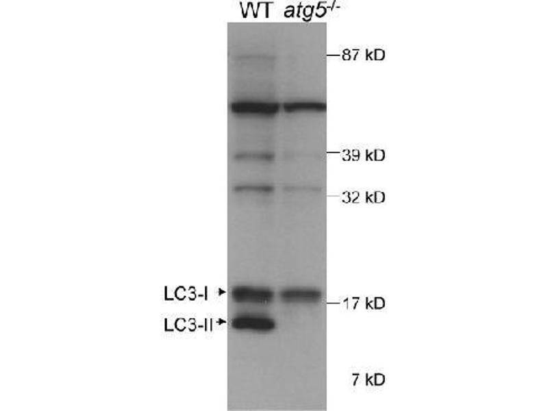 Western Blotting (WB) image for anti-Microtubule-Associated Protein 1 Light Chain 3 beta (MAP1LC3B) (AA 25-121) antibody (ABIN250723)