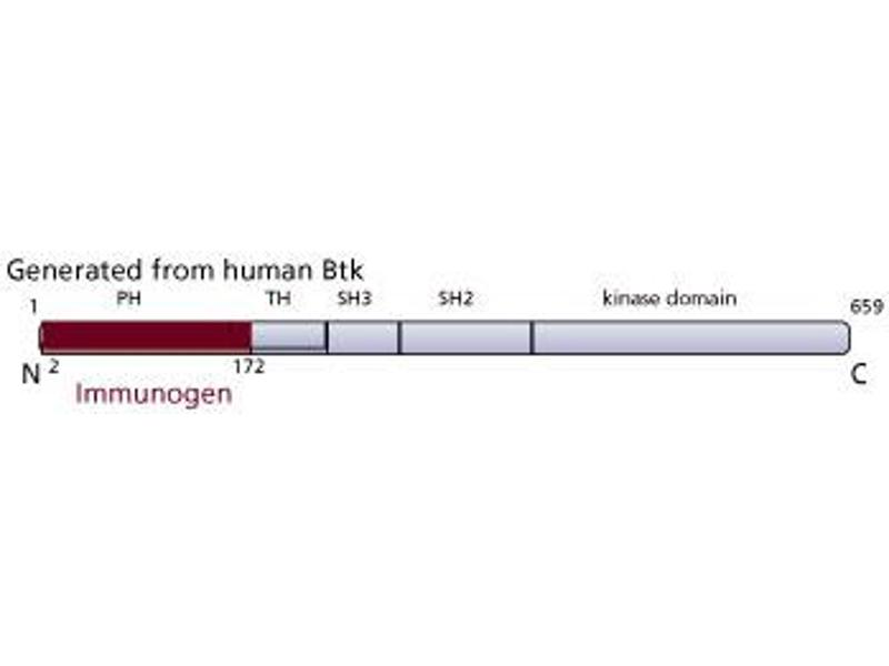 image for anti-Bruton Agammaglobulinemia tyrosine Kinase (BTK) (AA 2-172), (N-Term) antibody (ABIN968375)