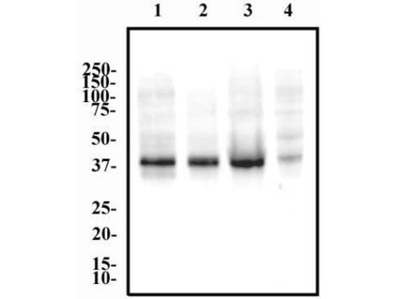 Western Blotting (WB) image for anti-Erythropoietin Receptor (EPOR) antibody (ABIN258851)