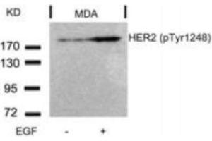 Western Blotting (WB) image for anti-V-Erb-B2 erythroblastic Leukemia Viral Oncogene Homolog 2, Neuro/glioblastoma Derived Oncogene Homolog (Avian) (ERBB2) (pTyr1248) antibody (ABIN4309121)