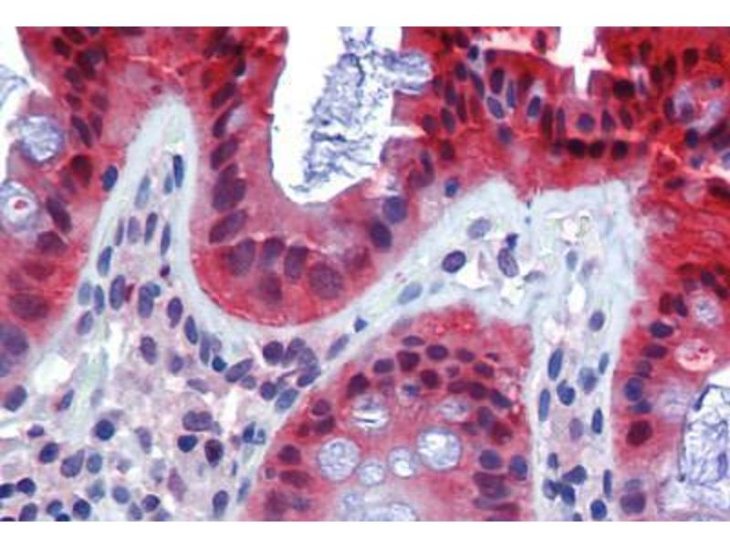 Immunohistochemistry (Paraffin-embedded Sections) (IHC (p)) image for anti-Caspase 7, Apoptosis-Related Cysteine Peptidase (CASP7) antibody (ABIN462356)