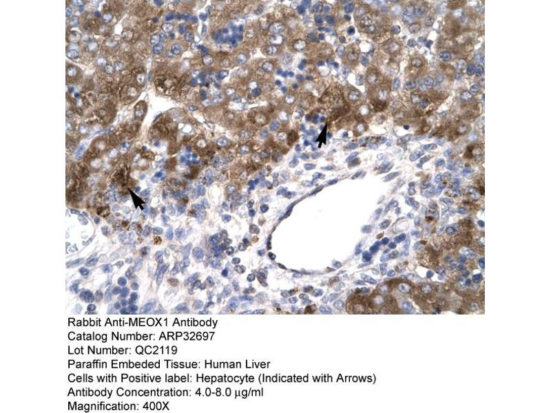 Immunohistochemistry (IHC) image for anti-Mesenchyme Homeobox 1 (MEOX1) (N-Term) antibody (ABIN2777534)