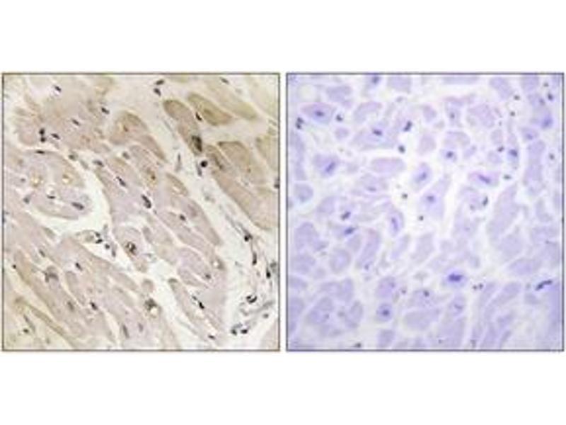 Immunohistochemistry (IHC) image for anti-Protein Kinase, AMP-Activated, gamma 2 Non-Catalytic Subunit (PRKAG2) (AA 1-50) antibody (ABIN1534170)