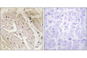 Image no. 1 for anti-Protein Kinase, AMP-Activated, gamma 2 Non-Catalytic Subunit (PRKAG2) (AA 1-50) antibody (ABIN1534170)