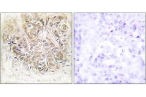 Immunohistochemistry (IHC) image for anti-Tumor Protein, Translationally-Controlled 1 (TPT1) (AA 71-120) antibody (ABIN1533616)