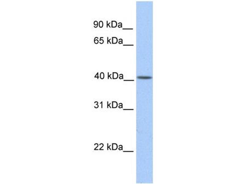 Western Blotting (WB) image for anti-Mitochondrially Encoded Cytochrome B (MT-CYB) (N-Term) antibody (ABIN2773962)