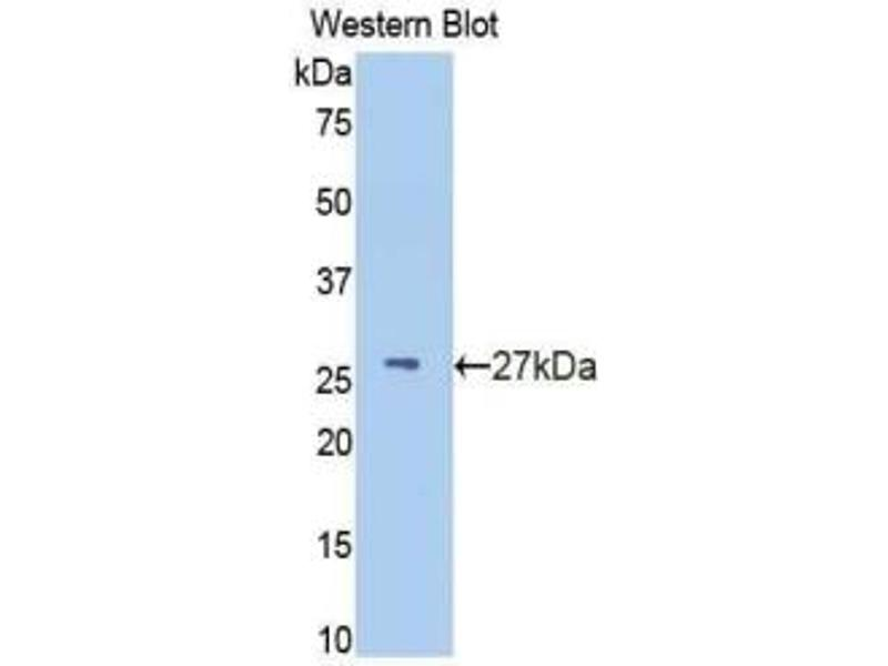 Western Blotting (WB) image for anti-Interferon (Alpha, beta and Omega) Receptor 1 (IFNAR1) (AA 28-227) antibody (ABIN2935140)