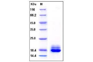 Image no. 1 for Cystatin C (CST3) (AA 27-146) (Active) protein (His tag) (ABIN2002851)