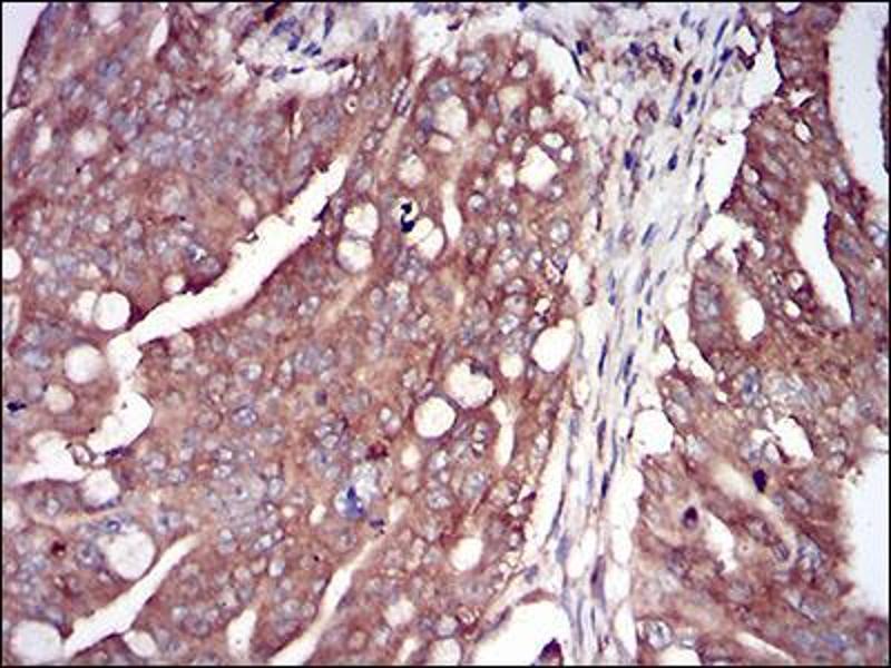 Immunohistochemistry (IHC) image for anti-Eukaryotic Translation Initiation Factor 2-alpha Kinase 2 (EIF2AK2) (AA 329-551) antibody (ABIN2682988)
