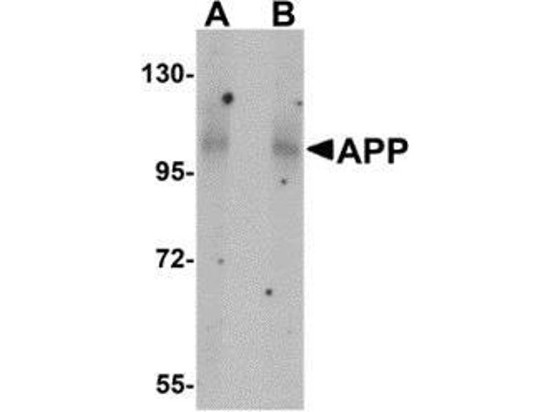 Western Blotting (WB) image for anti-Amyloid beta (A4) Precursor Protein (APP) (N-Term) antibody (ABIN499319)