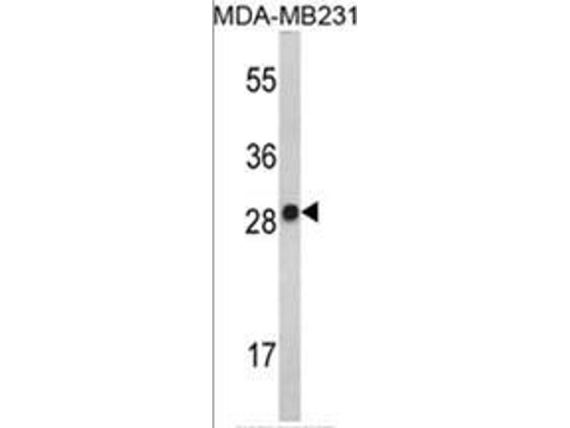 Western Blotting (WB) image for anti-IL2 antibody (Interleukin 2) (AA 57-86) (ABIN453132)