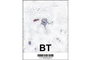 Image no. 2 for anti-Phosphoinositide 3 Kinase, p85 beta (PI3K p85b) (AA 1-30), (N-Term) antibody (ABIN392580)