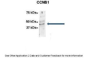 Image no. 5 for anti-Cyclin B1 (CCNB1) (C-Term) antibody (ABIN2779290)