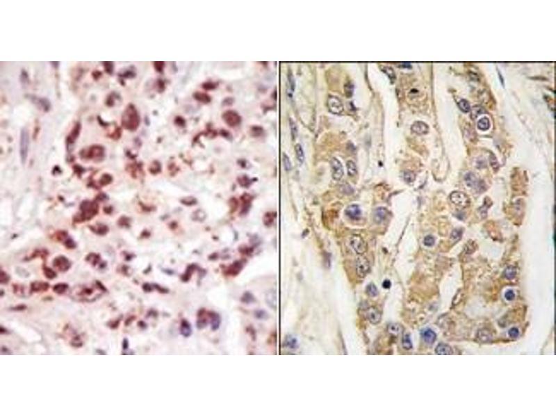 image for anti-MAP3K8 antibody (Mitogen-Activated Protein Kinase Kinase Kinase 8) (C-Term) (ABIN360360)
