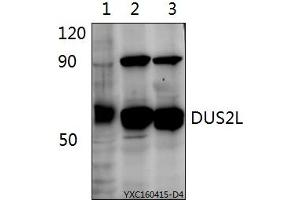 Image no. 1 for anti-Dihydrouridine Synthase 2-Like, SMM1 Homolog (S. Cerevisiae) (DUS2L) (AA 441-485) antibody (ABIN6711066)