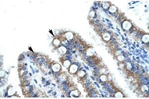 Immunohistochemistry (IHC) image for anti-MDS1 and EVI1 Complex Locus (MECOM) (C-Term) antibody (ABIN2777403)