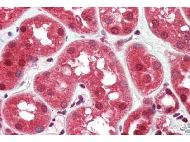 Image no. 3 for anti-RASD Family, Member 2 (RASD2) (N-Term) antibody (ABIN461905)