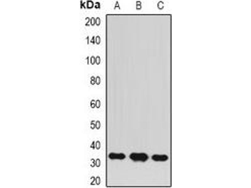 Western Blotting (WB) image for anti-BCL10 antibody (B-Cell CLL/lymphoma 10) (ABIN3197908)